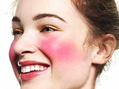 脸部过敏了怎么办 教你有效缓解脸部过敏