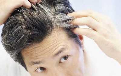 年轻人长白头发 为什么越来越多的年轻人开始出现白头发