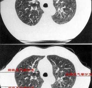 肺会引起胸闷么 怎么有时还胸闷呢